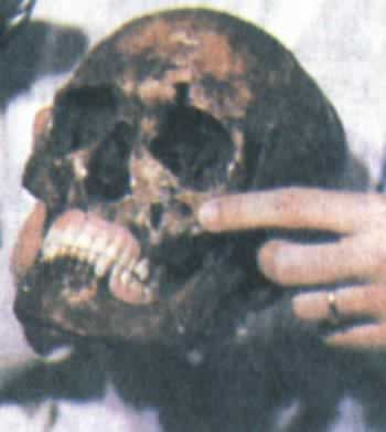 1985-6-21 Angel of Death Mengele was proved dead